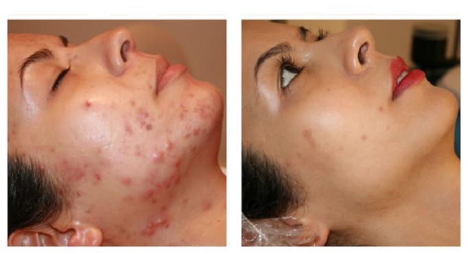 Receitas Naturais combate acne e espinhas