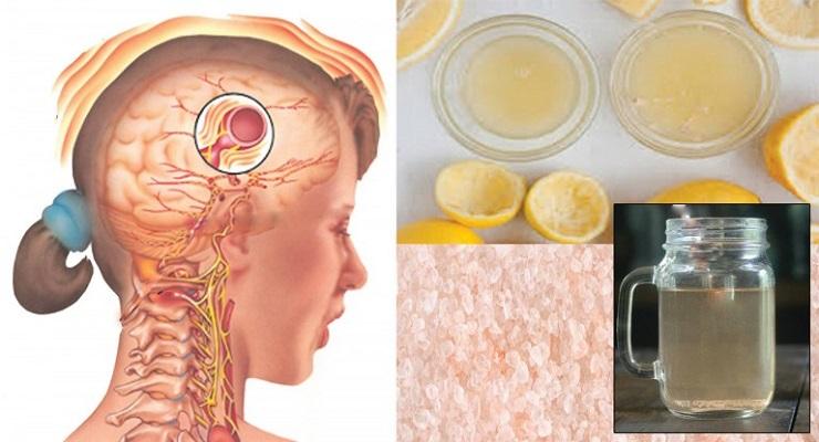 dor de cabeça remedio caseiro