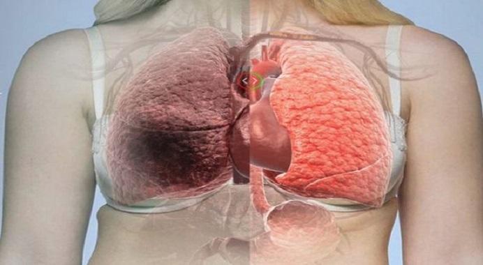 Como sentir o pulmão novo ? veja essa dica e limpe seus pulmões