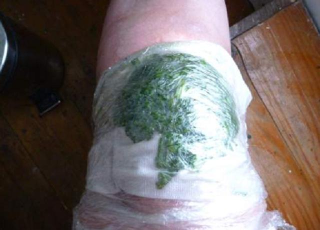 Sofre com dores nos joelhos? Coloque este remédio de repolho nos seus joelhos e pare de sofrer!