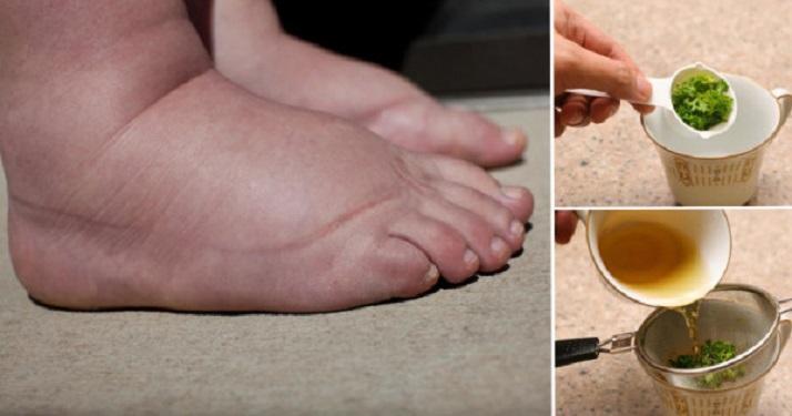 Remédio caseiro para pés inchados
