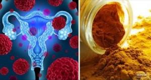 acafrao_-_cancer_-_medica_americana_-_novo