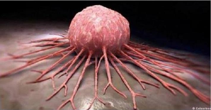 Pesquisadores descobrem remédio para o câncer: reduz até 90% do tumor