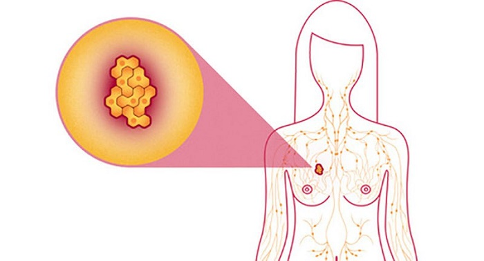 15 Alimentos que protegem contra o câncer de mama