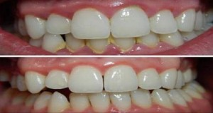 clareamento_dental_-_novo_-_cura