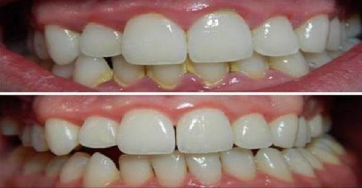 Dentes brancos e limpos com 1 ingrediente