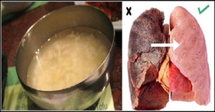 Este poderoso remédio caseiro desintoxica os pulmões rapidamente – até mesmo de quem fumou por muito tempo!