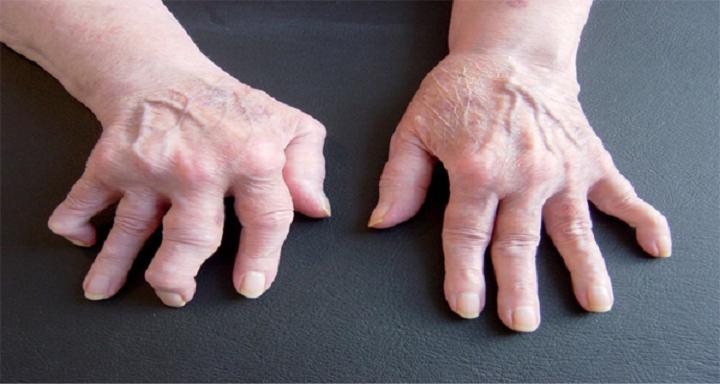 2 melhores e mais baratos remédios para artrite, reumatismo e dores nas costas