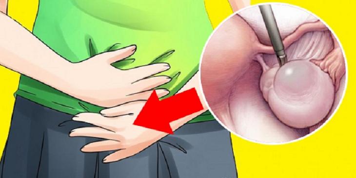 Sinais de cisto no ovário que a maioria das mulheres desconhece