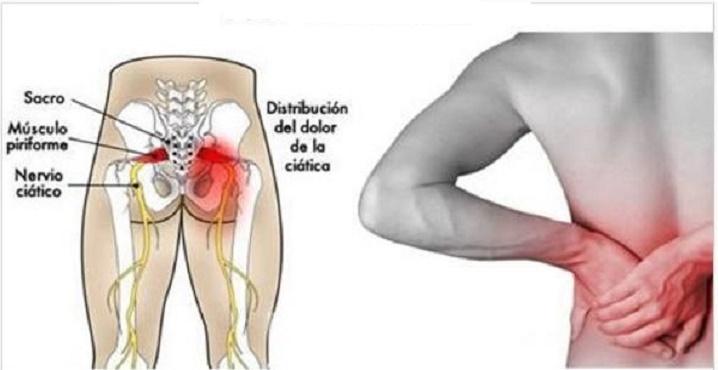 4 remédios caseiros para eliminar dor ciática, nas articulações e nas costas.