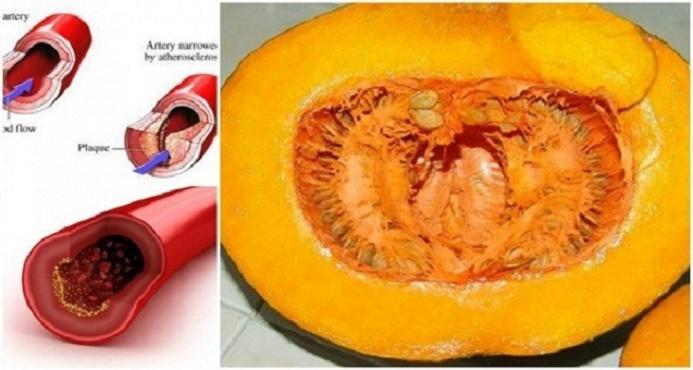 Tratamento normaliza colesterol, triglicerídeos, diabetes e ácido úrico em 30 dias.