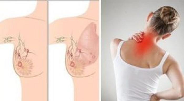 5 sinais de câncer de mama