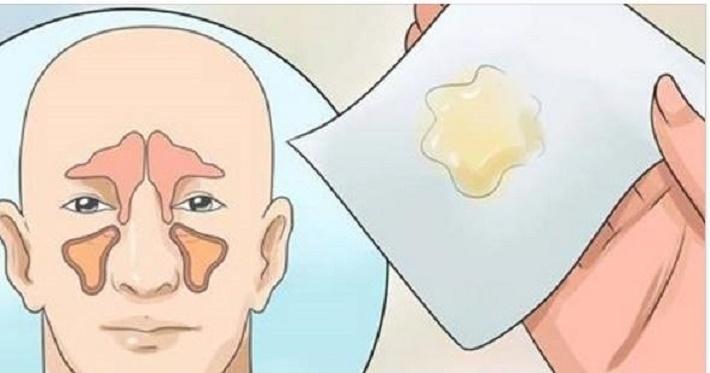 Como eliminar a congestão nasal em poucos minutos sem o uso de medicamentos
