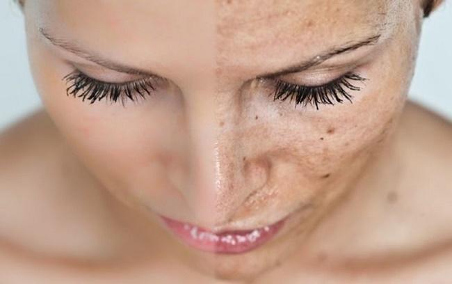 Como livrar-se de manchas na pele