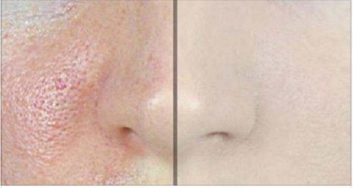 Como fechar os poros do rosto com apenas 2 ingredientes