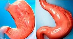 Como reduzir o seu estômago sem cirurgia