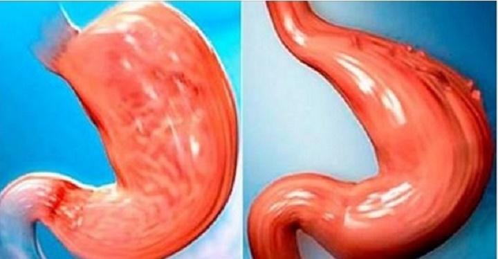 Como reduzir o seu estômago sem cirurgia e de forma 100% natural