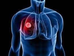 Sinais de câncer de pulmão