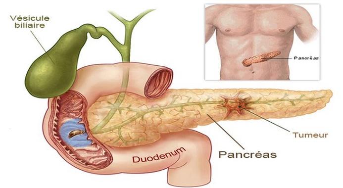 cancer pancreas sintomas