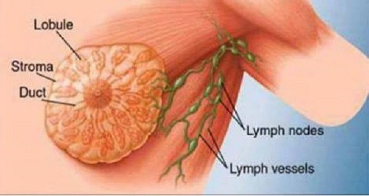 Uma das causas do câncer de mama segundo cientistas. E você a consome quase todos os dias