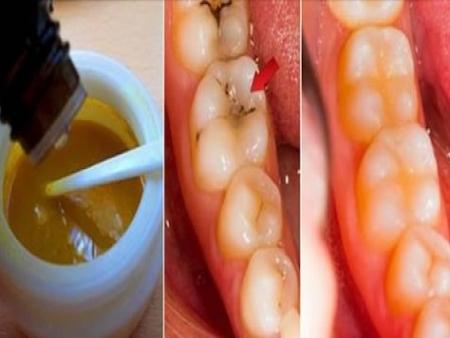 Trate cáries dentárias em casa de forma natural