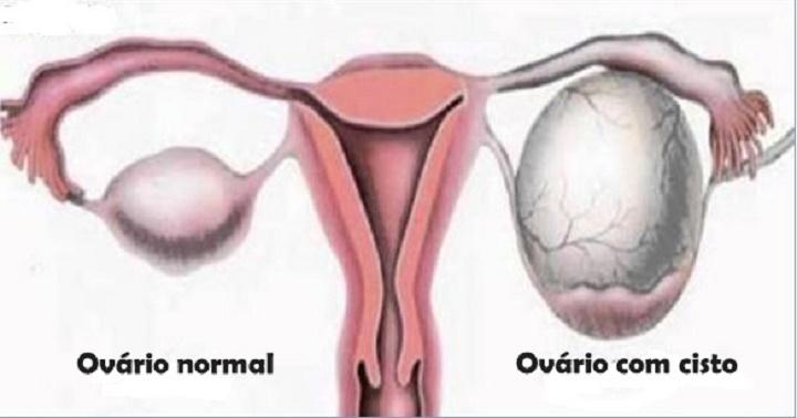 Sinais de cisto no ovário que toda mulher precisa saber