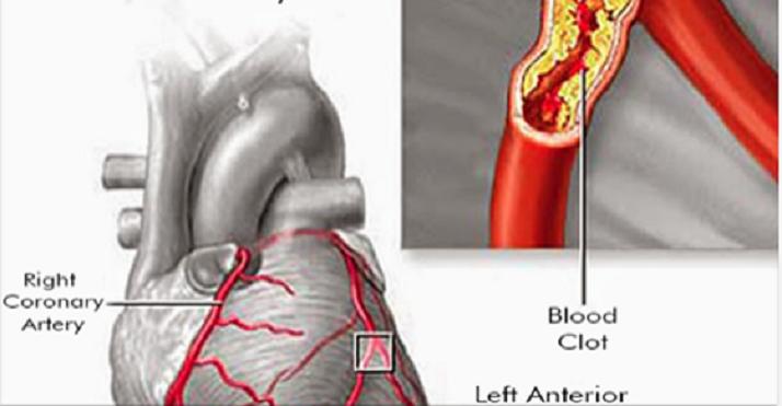 Limpe as artérias e melhore a circulação com este simples remédio caseiro
