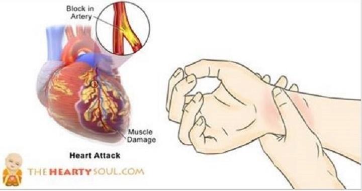 80% dos ataques cardíacos podem ser evitados com estes 8 segredos da medicina natural