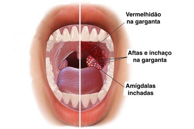 Acabe com a dor de garganta e a rouquidão rapidamente com este remédio natural