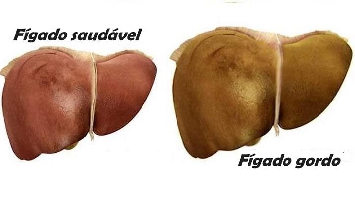 Tratamento cura fígado gordo com 1 fruta