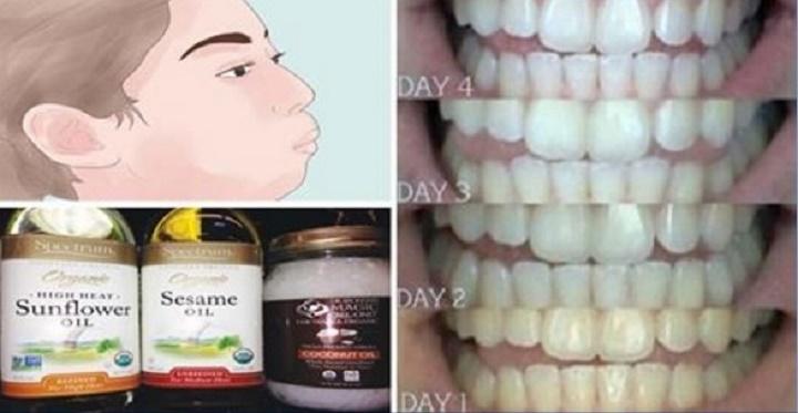 Como este óleo pode clarear seus dentes e deixar as gengivas muito mais saudáveis em minutos
