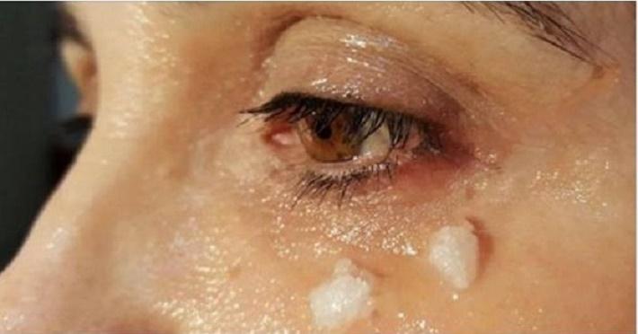 oleo de coco ao redor dos olhos
