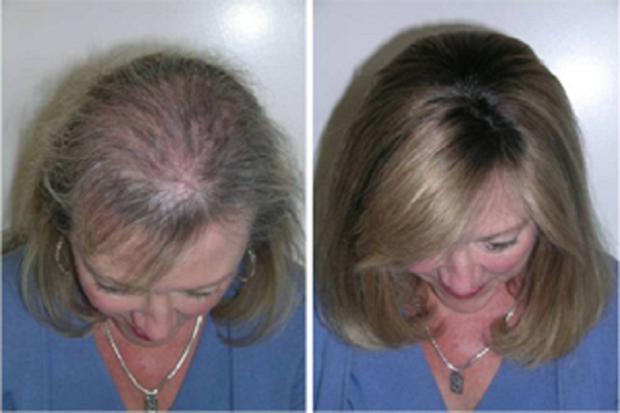 Óleo poderoso para renovar os cabelos e acabar com a perda de de fios