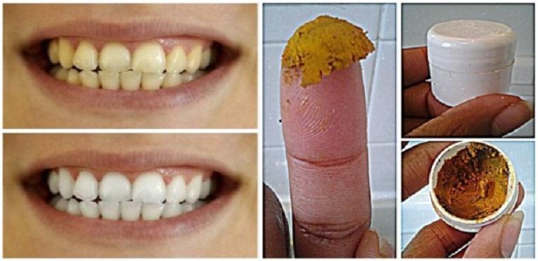 Depois desta pasta dental caseira, seus dentes vão ficar brancos e fortes como nunca