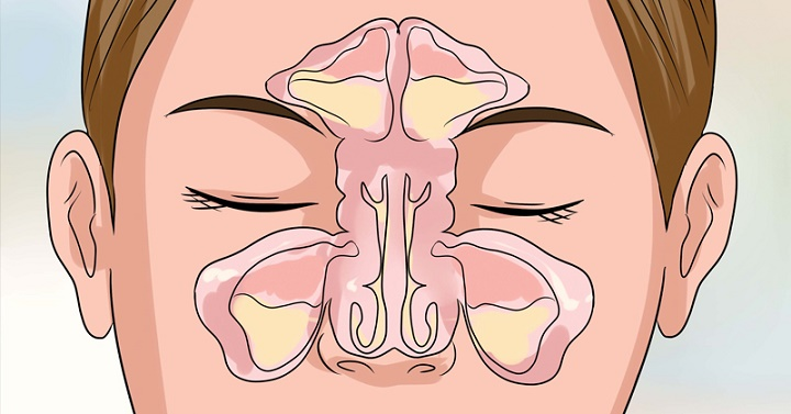 Livre-se de vez da rinite e sinusite com leite de magnésia