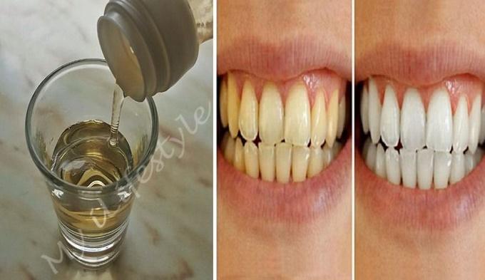 Clareamento caseiro para dentes amarelos