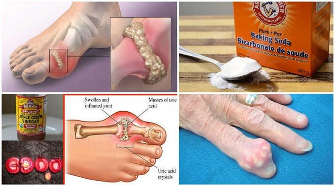 Elimine a gota e o ácido úrico rapidamente com estes tratamentos caseiros