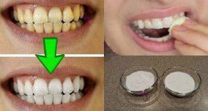 bicarbonato_e_oleo_de_coco_-_dentes