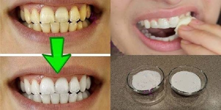 Clareie seus dentes em menos de 3 minutos