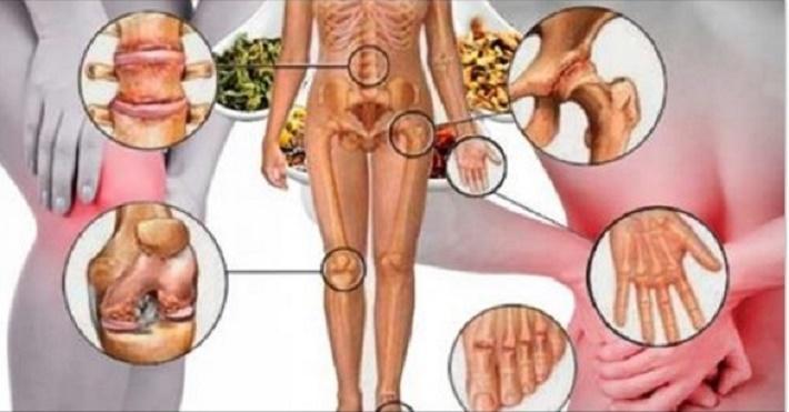 8 remédios anti-inflamatórios naturais para eliminar as dores nas articulações
