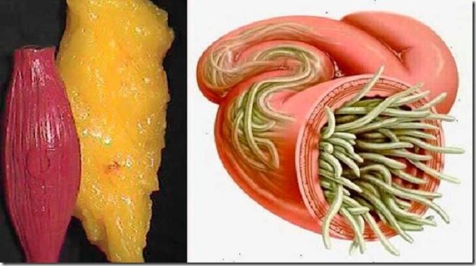 Com estes 2 ingredientes, você vai eliminar vermes e depósitos de gordura do corpo sem sofrimento