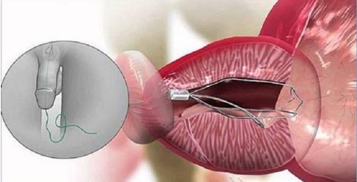 Melhor solução natural para doenças na próstata