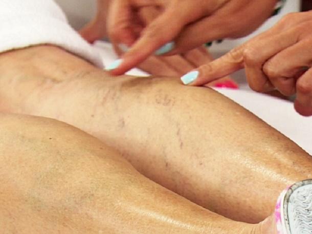 Os melhores remédios da medicina popular para eliminar vasinhos e varizes das pernas