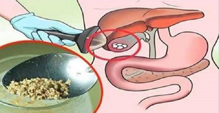 Remédio natural com apenas 1 ingrediente – elimine cálculos na vesícula sem cirurgia!