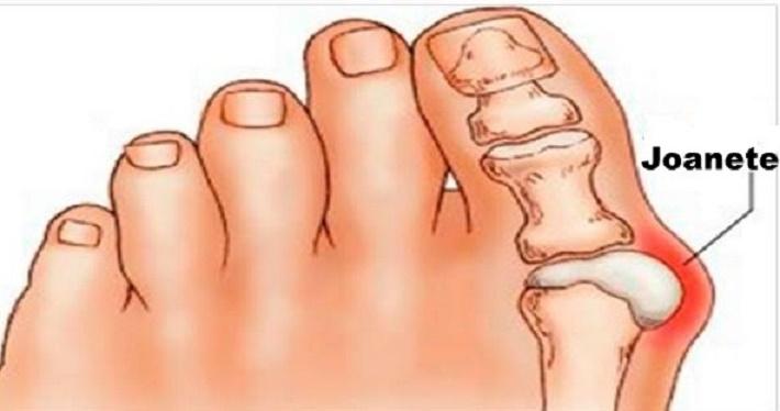 Remédio caseiro com sal para desinflamar e eliminar a dor de joanetes
