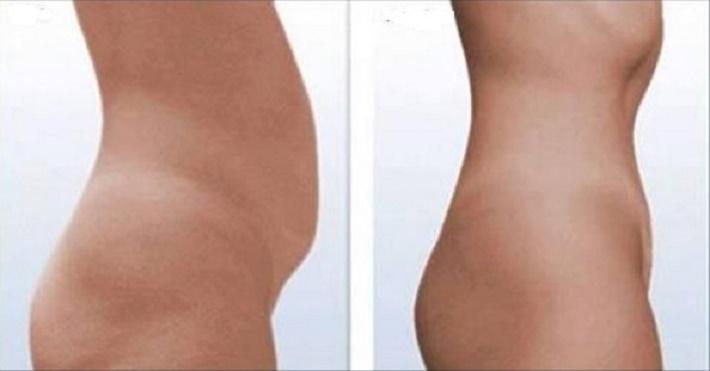 Fisioterapeuta cria método que está fazendo sucesso na Europa: seca barriga sem exercícios