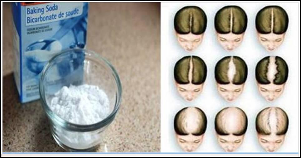 Xampu caseiro de bicarbonato de sódio: seu cabelo vai crescer como mágica