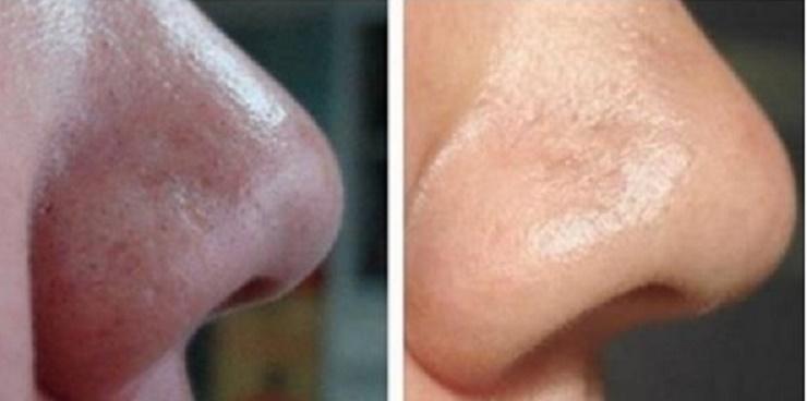 7 usos do bicarbonato de sódio que vão deixar você muito mais bonita!