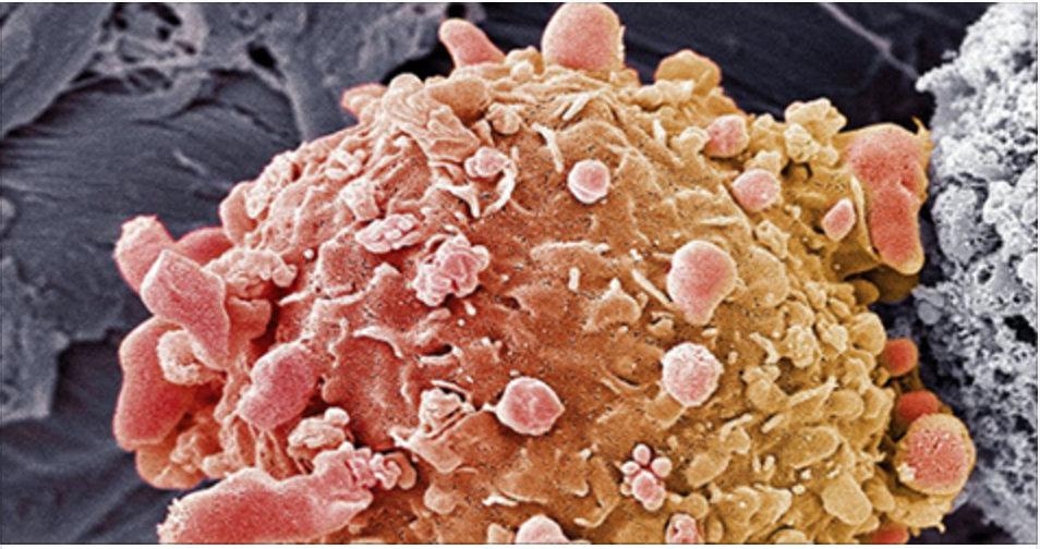O câncer morre quando você come estes 10 alimentos. Consuma-os todos os dias