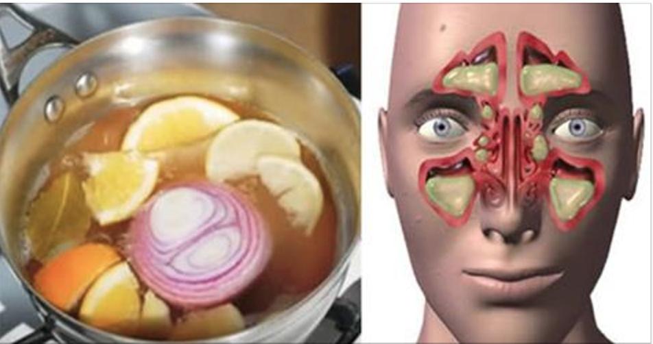 """Esta é a """"bomba"""" contra a congestão nasal e a gripe – vai curar você em 24 horas"""